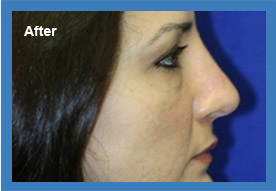After Rhinoplasty 02Image