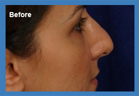 Before and After Revision Rhinoplasty Image2