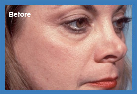 Before and After Revision Rhinoplasty Image 03